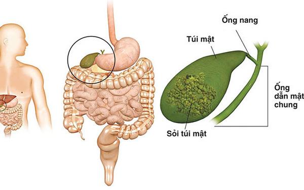 4 thói quen phổ biến có thể khiến bạn bị cắt bỏ túi mật: Ngăn ngừa sỏi và ung thư thế nào? - Ảnh 1.