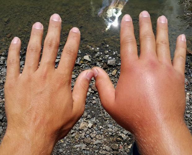 Đừng coi thường sưng tấy do nắng nóng hay da khô nứt nẻ vì giá lạnh, thời tiết có thể gây ra những tác hại đáng sợ thế này với cơ thể - Ảnh 1.
