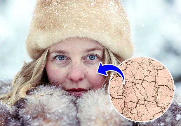 Đừng coi thường sưng tấy do nắng nóng hay da khô nứt nẻ vì giá lạnh, thời tiết có thể gây ra những tác hại đáng sợ thế này với cơ thể - Ảnh 3.