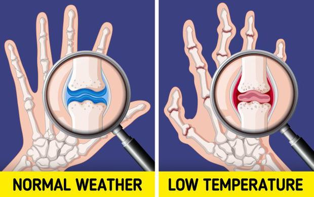 Đừng coi thường sưng tấy do nắng nóng hay da khô nứt nẻ vì giá lạnh, thời tiết có thể gây ra những tác hại đáng sợ thế này với cơ thể - Ảnh 5.