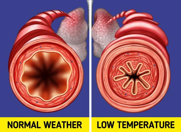 Đừng coi thường sưng tấy do nắng nóng hay da khô nứt nẻ vì giá lạnh, thời tiết có thể gây ra những tác hại đáng sợ thế này với cơ thể - Ảnh 10.