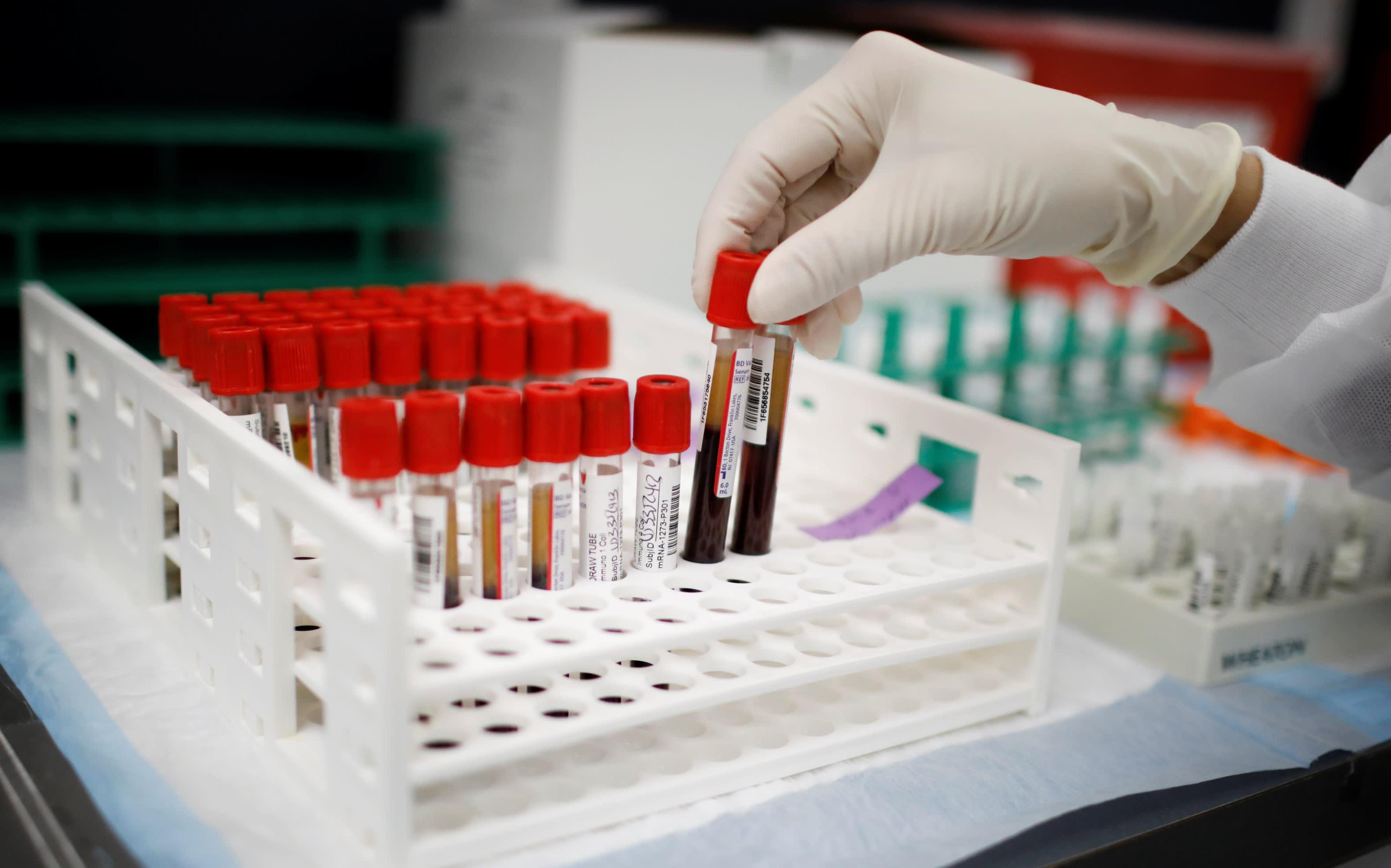 Brazil hủy mua vaccine Trung Quốc chỉ sau 1 ngày