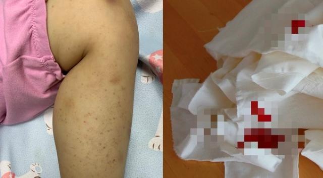 Bé gái 8 tuổi chảy máu mũi, xuất hiện ban đỏ và vết bầm tím, bác sĩ cảnh báo trường hợp nghiêm trọng có thể tử vong - Ảnh 1.