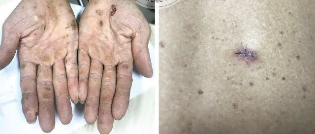 Cảnh báo nhiễm độc thạch tín gây ung thư da mà không hề hay biết - Ảnh 1.