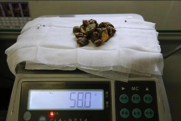 Bác sĩ cho uống 2kg nước có ga mỗi ngày để loại bỏ sỏi dạ dày trong cơ thể người đàn ông do ăn liền một lúc 1.5kg quả hồng - Ảnh 3.
