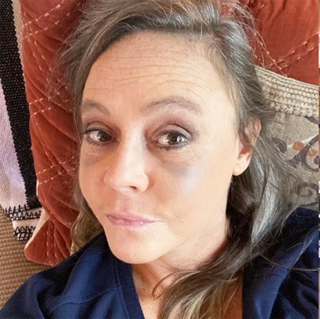Người phụ nữ này tưởng mình bị sưng mắt do dị ứng nhưng hóa ra đó lại là triệu chứng của bệnh về mắt có liên quan tuyến giáp - Ảnh 3.