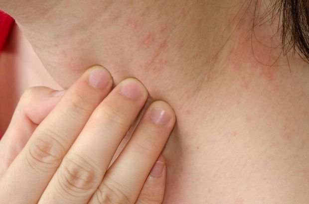 Trong người có 2 chứng ngứa ngáy, đừng nghĩ chỉ là dị ứng mà còn có thể là dấu hiệu cảnh báo bệnh gan - Ảnh 1.