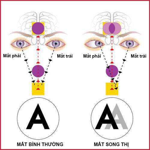 Nguyên nhân và hướng điều trị bệnh song thị, chứng nhìn một vật thành hai hình - Ảnh 1.