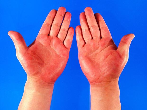 Quan sát đôi tay, nếu thấy có 3 tín hiệu xấu thì nên chú ý sức khỏe vì nguy cơ mắc bệnh về gan rất cao - Ảnh 4.