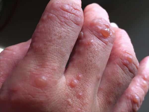 Bệnh tiểu đường đang âm thầm phát triển nếu bạn có một trong 6 dấu hiệu này trên da: Đa phần hệt như viêm da khiến nhiều người chủ quan - Ảnh 2.