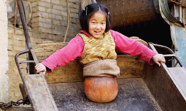 Cô bé bóng rổ bị cắt bỏ toàn bộ phần thân dưới khiến hàng triệu người quặn lòng năm xưa giờ sống thế nào? - Ảnh 2.