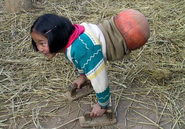 Cô bé bóng rổ bị cắt bỏ toàn bộ phần thân dưới khiến hàng triệu người quặn lòng năm xưa giờ sống thế nào? - Ảnh 3.