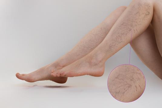 Bác sĩ BV Việt Đức cảnh báo căn bệnh khiến tê chân, chuột rút về chiều: Phụ nữ thường đi giày cao gót cần hết sức lưu ý - Ảnh 1.