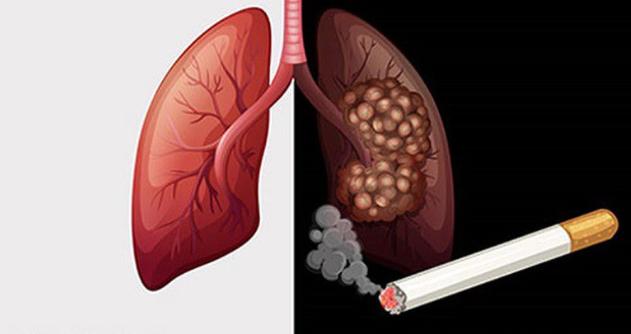 Tế bào ung thư thích bạn làm 4 điều nhất mỗi ngày, không sửa ngay thì sớm rước bệnh vào người - Ảnh 1.
