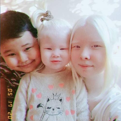 """Cặp chị em bạch tạng """"gây bão"""" vì vẻ đẹp không tì vết, thế nhưng người được chú ý hơn cả lại là cậu em trai thứ 3 trong gia đình  - Ảnh 3."""