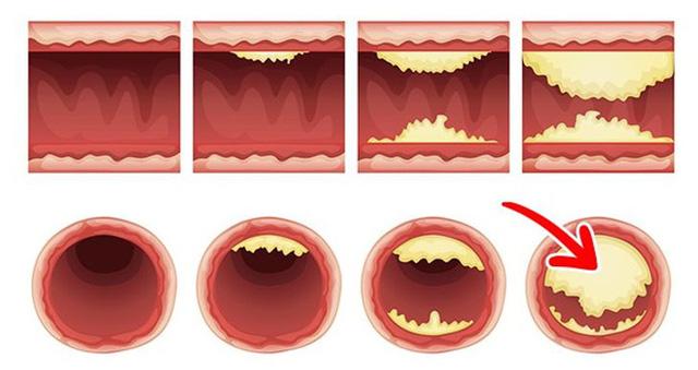 Điều gì xảy ra với cơ thể khi bạn ăn 2 quả trứng mỗi ngày? - Ảnh 5.