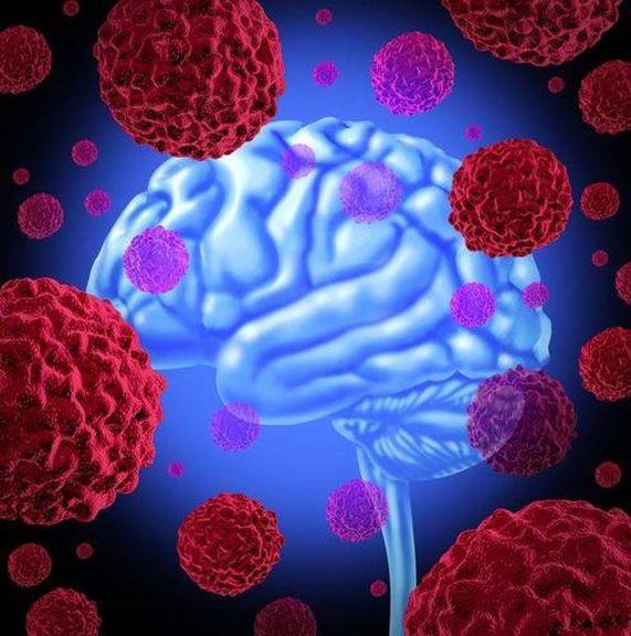 Ung thư không khủng khiếp, điều khủng khiếp là tế bào ung thư sẽ di căn, cơ thể xuất hiện 4 hiện tượng này, hãy đi khám ngay lập tức - Ảnh 1.