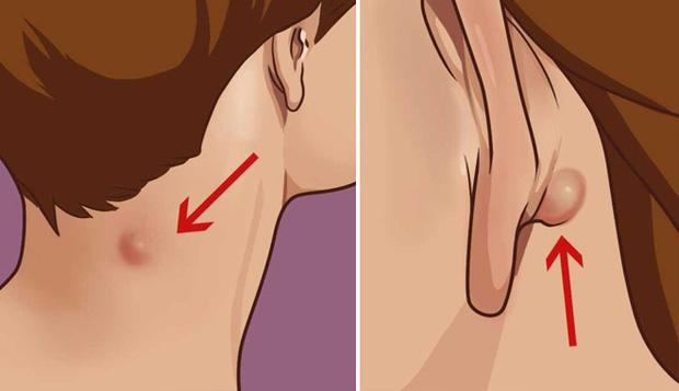 Đừng bỏ qua 4 biểu hiện bất thường trên da vì nó có thể là dấu hiệu sớm của bệnh ung thư - Ảnh 3.