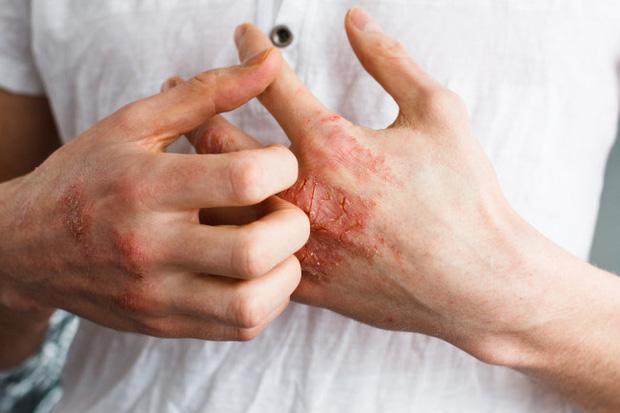 Đừng bỏ qua 4 biểu hiện bất thường trên da vì nó có thể là dấu hiệu sớm của bệnh ung thư - Ảnh 4.
