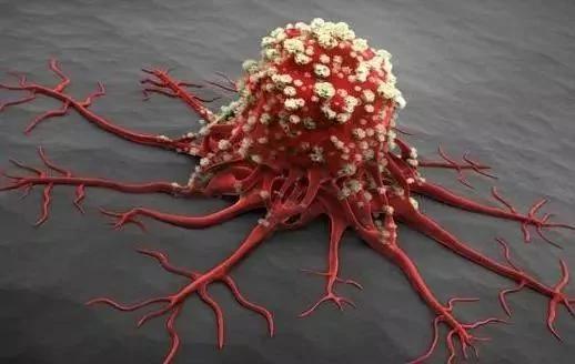 Có 4 thay đổi nhỏ trên cơ thể, hãy coi chừng vì có thể bệnh ung thư đang âm thầm tìm đến bạn - Ảnh 1.