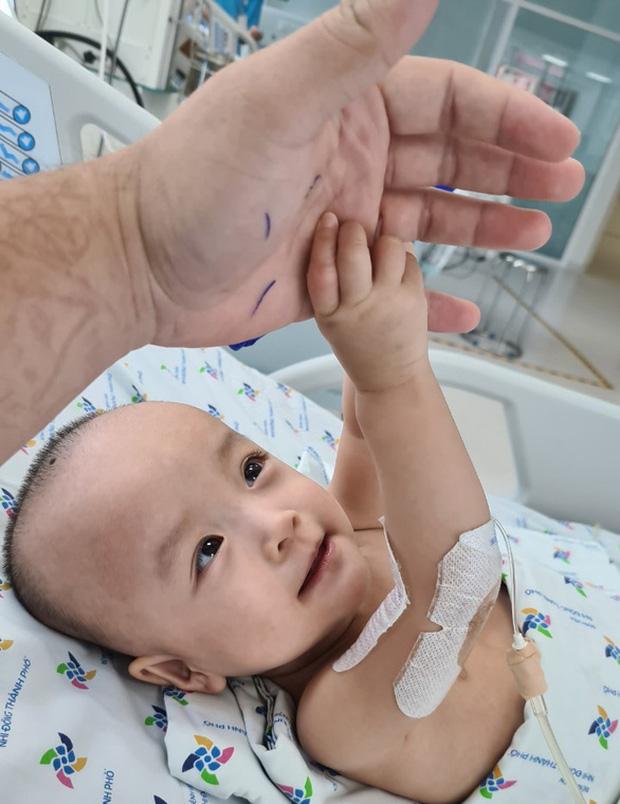 Chị em Trúc Nhi - Diệu Nhi tươi cười nắm lấy tay bác sĩ, dự kiến sẽ tập đi trong 6 tuần tới - Ảnh 2.