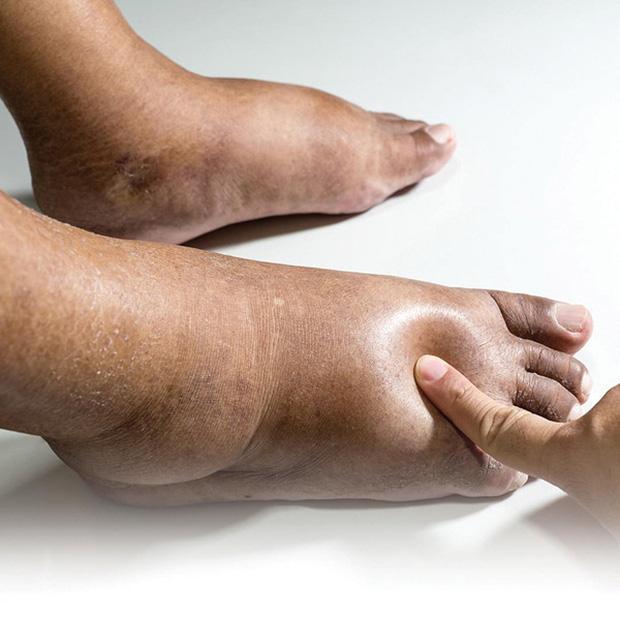 Thận có khỏe hay không, cứ nhìn vào 4 đặc điểm ở bàn chân là rõ ngay vấn đề - Ảnh 1.