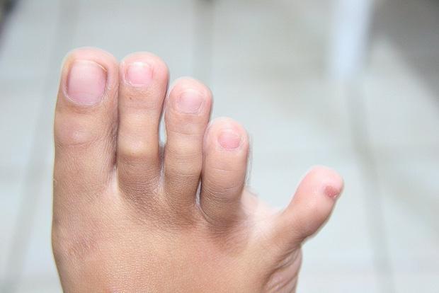 Thận có khỏe hay không, cứ nhìn vào 4 đặc điểm ở bàn chân là rõ ngay vấn đề - Ảnh 2.