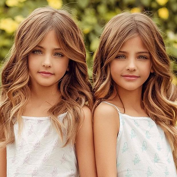 Cặp song sinh được mệnh danh đẹp nhất thế giới, 6 tháng tuổi đã nhận hợp đồng quảng cáo có ngoại hình thay đổi ra sao sau 10 năm? - Ảnh 4.
