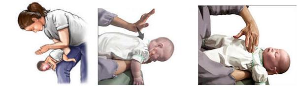 Lại một trẻ tử vong vì hóc thạch: Cơ hội duy nhất chỉ 4-5 phút, bố mẹ cần làm gì cứu con? - Ảnh 1.