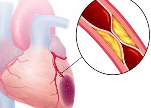 WHO phân loại thịt đỏ là 1 yếu tố nguy cơ gây bệnh ung thư, cắt giảm món khoái khẩu này để nhận đủ lợi ích bất ngờ: Trái tim khỏe, trí tuệ minh mẫn, cơ thể tràn năng lượng - Ảnh 2.