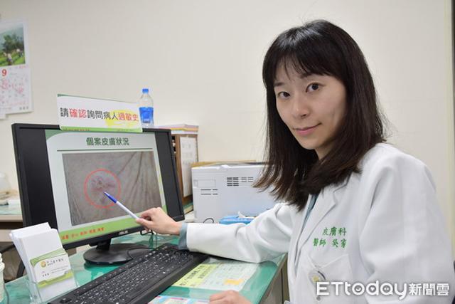 Chủ quan với vết ban đỏ trên trán, người phụ nữ không ngờ đó là dấu hiệu bệnh ung thư - Ảnh 3.