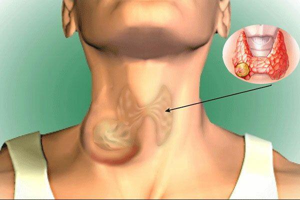 Ung thư tuyến giáp chiếm 90% bệnh nhân ung thư nội tiết, dấu hiệu âm thầm nhưng có thể điều trị được: Bác sĩ BV Bạch Mai chỉ rõ 5 điều quan trọng về căn bệnh này - Ảnh 2.