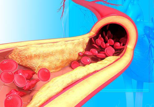 Tăng cholesterol máu cảnh báo mắc các bệnh gì: Bác sĩ BV Bạch Mai chỉ ra những căn bệnh quen thuộc, nhưng rất nguy hiểm cho sức khỏe - Ảnh 2.