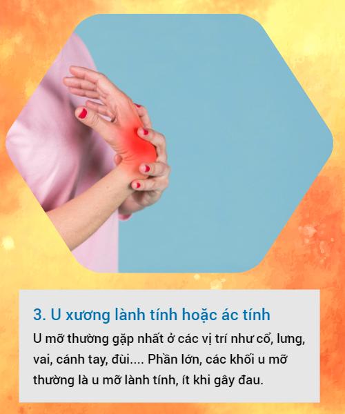 BS khuyến cáo về các loại u vùng cổ tay hay gặp: Đừng bỏ qua vì đó có thể là dấu hiệu cảnh báo bệnh nguy hiểm - Ảnh 3.