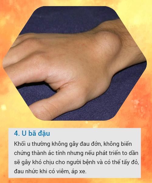 BS khuyến cáo về các loại u vùng cổ tay hay gặp: Đừng bỏ qua vì đó có thể là dấu hiệu cảnh báo bệnh nguy hiểm - Ảnh 4.
