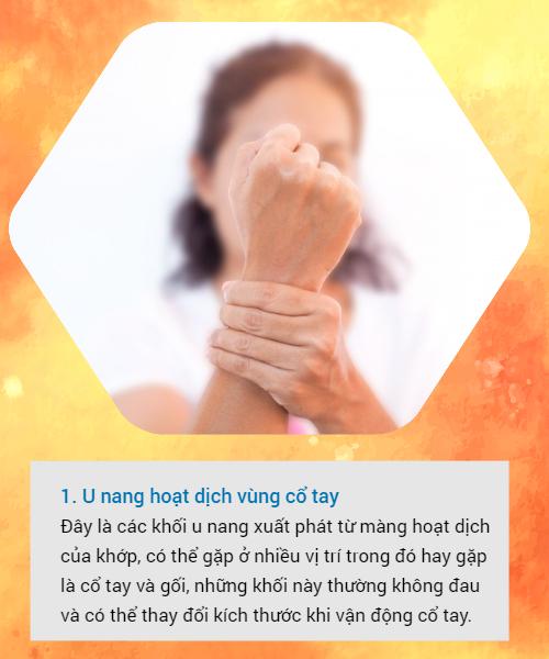 BS khuyến cáo về các loại u vùng cổ tay hay gặp: Đừng bỏ qua vì đó có thể là dấu hiệu cảnh báo bệnh nguy hiểm - Ảnh 1.