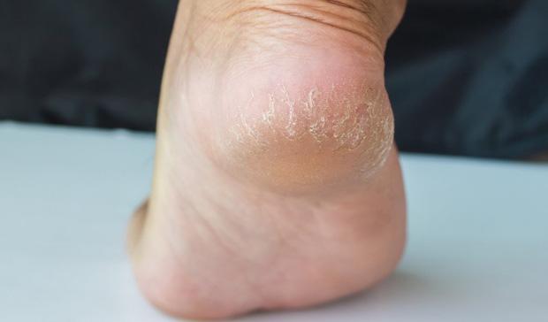 3 đặc điểm ở bàn chân giúp nam giới nhận biết mình có nằm trong nhóm sống thọ hay không - Ảnh 2.