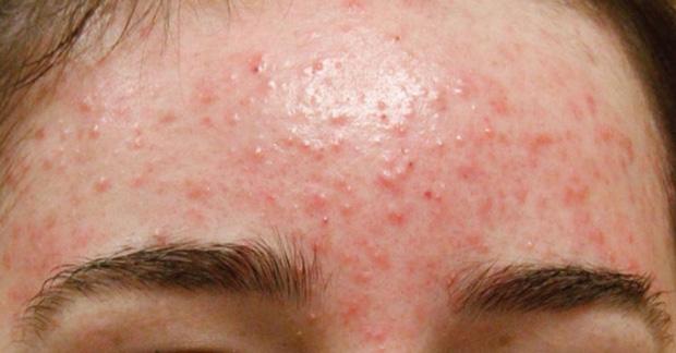 4 vấn đề về da mà hội thức đêm xuyên Tết dễ gặp, điều nào cũng tàn phá nhan sắc nghiêm trọng - Ảnh 1.