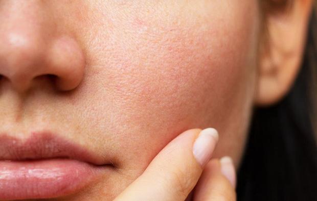 4 vấn đề về da mà hội thức đêm xuyên Tết dễ gặp, điều nào cũng tàn phá nhan sắc nghiêm trọng - Ảnh 2.