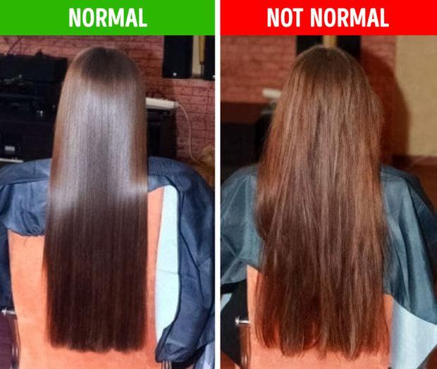8 điều bất thường trên mái tóc ngầm cảnh báo nhiều vấn đề sức khỏe mà bạn chẳng hay biết - Ảnh 1.