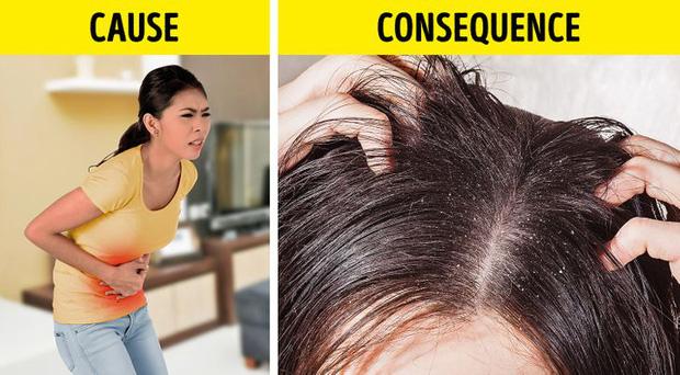 8 điều bất thường trên mái tóc ngầm cảnh báo nhiều vấn đề sức khỏe mà bạn chẳng hay biết - Ảnh 2.