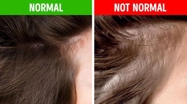 8 điều bất thường trên mái tóc ngầm cảnh báo nhiều vấn đề sức khỏe mà bạn chẳng hay biết - Ảnh 4.