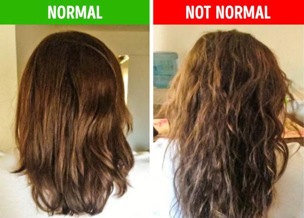 8 điều bất thường trên mái tóc ngầm cảnh báo nhiều vấn đề sức khỏe mà bạn chẳng hay biết - Ảnh 8.