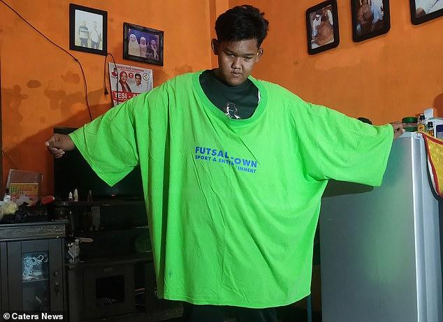 Từng được coi là em chã nặng nhất thế giới, cậu bé béo đến không đi học nổi giờ đã có ngoại hình thay đổi đáng kinh ngạc sau 5 năm - Ảnh 9.