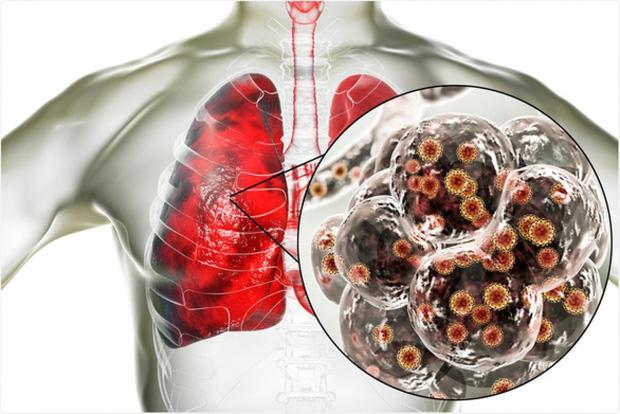 Chuyên gia WHO: Tốc độ lây lan của virus SARS-CoV-2 trên toàn thế giới đang chậm lại - Ảnh 1.