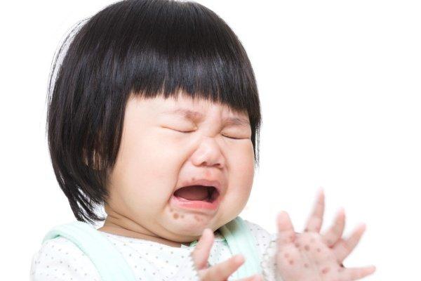 Bé 19 tháng tuổi tử vong nghi do tay chân miệng: Những biến chứng nghiêm trọng, cách nhận biết, điều trị bệnh cha mẹ cần nắm được - Ảnh 5.