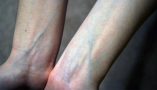 Người có gan xấu sẽ hiển thị rõ 4 vấn đề trên đôi bàn tay, mắc trúng 2 cái thì nên đi khám ngay - Ảnh 2.