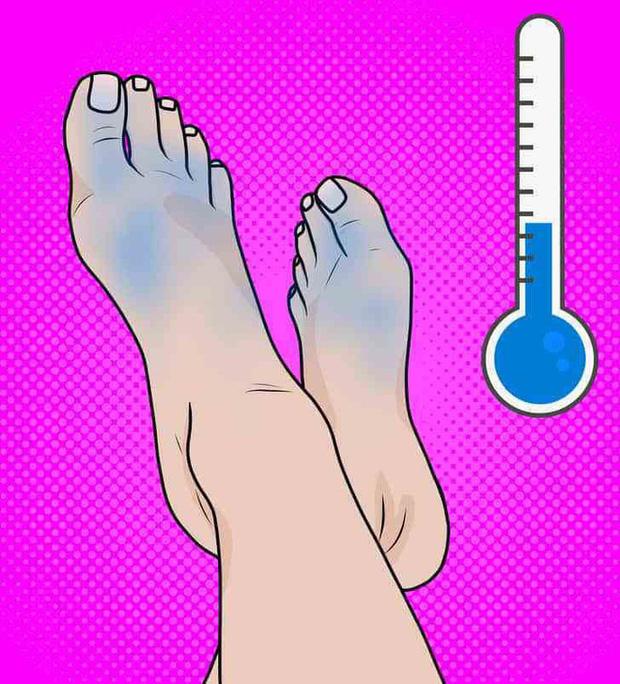Có cục máu đông trong cơ thể: bạn có thể phán đoán thông qua 3 hiện tượng bất thường ở bàn chân - Ảnh 3.