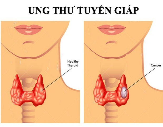 Càng nhiều người trẻ mắc ung thư tuyến giáp, bác sĩ Bệnh viện K khuyến cáo: Khi sờ hoặc nhìn thấy khối u xuất hiện vùng cổ, nên đi khám ngay - Ảnh 1.