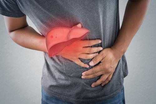 Gan kém có 4 dấu hiệu rõ rành rành sau, cần gặp bác sĩ ngay: Tuyệt chiêu bảo vệ gan trước khi quá muộn - Ảnh 3.